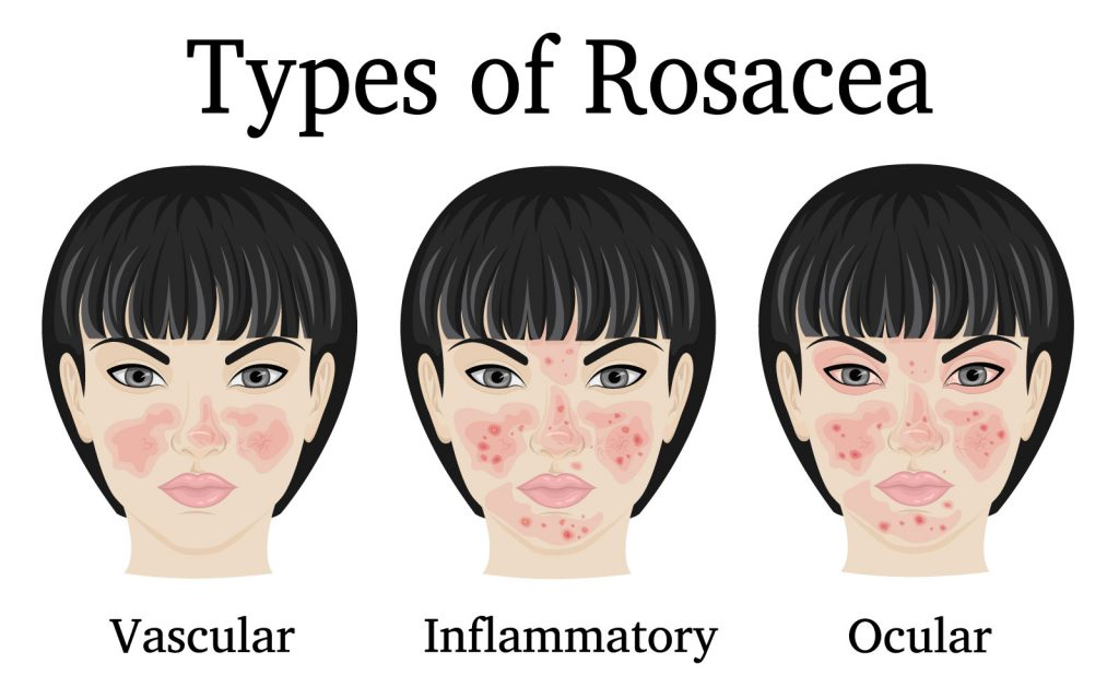 Types-of-Rosacea