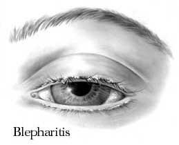 blepharitis-1